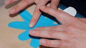 Bei der Physiotherapie in Hoyerswerda kommt auch elastisches Tape zum Einsatz.